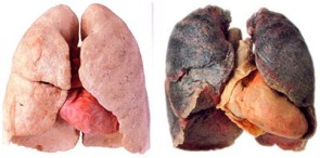 What-is-Non-small-cell-lung-cancer